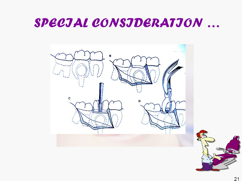 post extraction instructions ppt