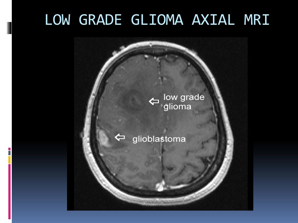 Difference Between Glioma and Glioblastoma
