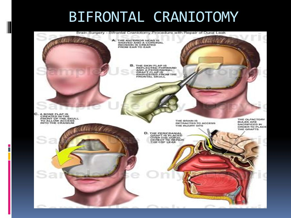 Chapter07 additionally Anatomy Of Paranasal Sinus also Skeletal System 12737472 furthermore Planes Axes likewise 10932574. on frontal body position