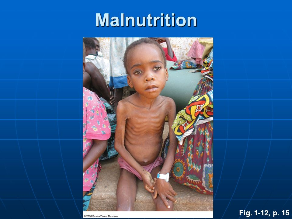 Malnutrition Fig. 1-12, p. 15