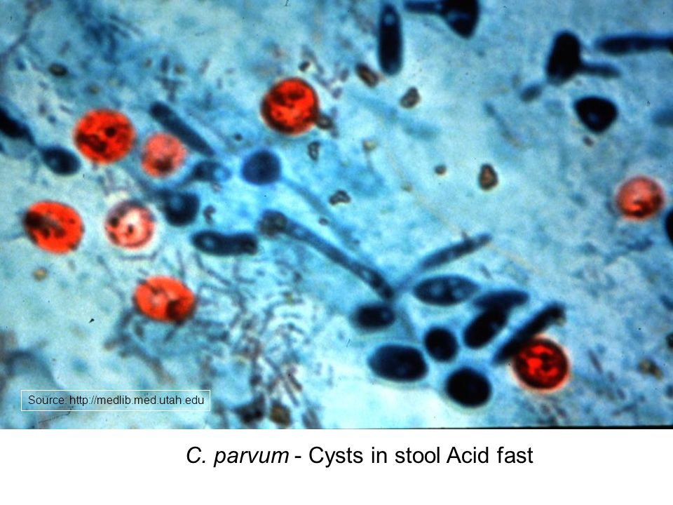 the clinical description of crypotosporidium parvum pathogens and its effects And as a pathogen with long-term effect cryptosporidium parvum strains by small subunit rrna the clinical manifestations of cryptosporidiosis are largely.