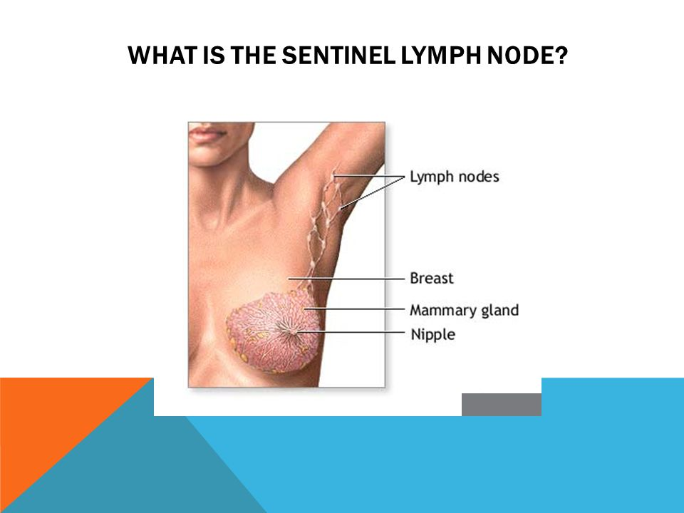 lymph node on breast icd-9 code