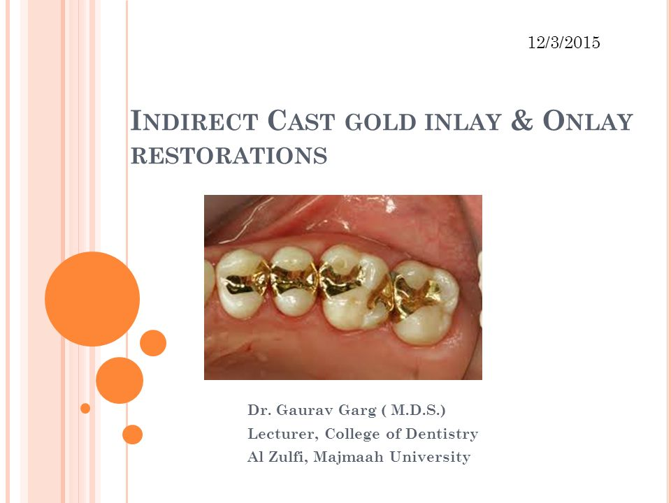 Indirect Cast gold inlay & Onlay restorations