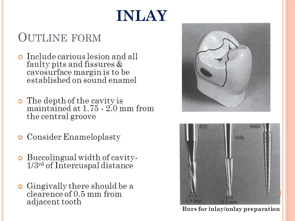 INLAY Outline form. Include carious lesion and all faulty pits and fissures & cavosurface margin is to be established on sound enamel.