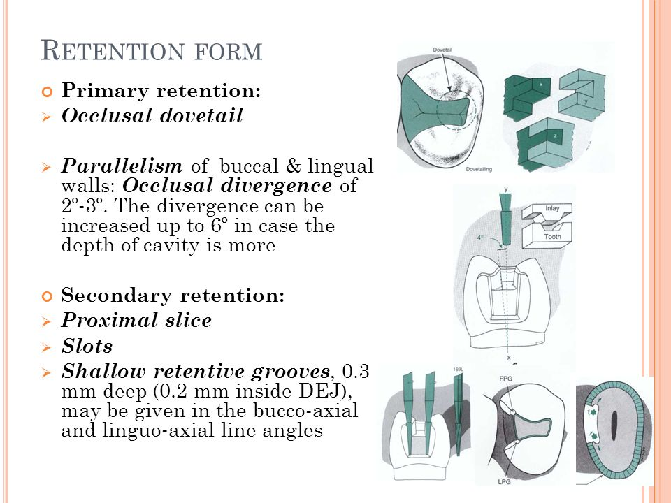 Retention form Primary retention: Occlusal dovetail