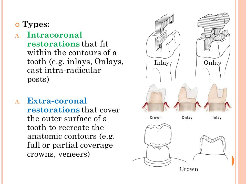 Types: Intracoronal restorations that fit within the contours of a tooth (e.g. inlays, Onlays, cast intra-radicular posts)