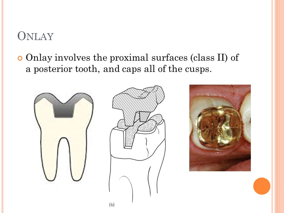 Onlay Onlay involves the proximal surfaces (class II) of a posterior tooth, and caps all of the cusps.