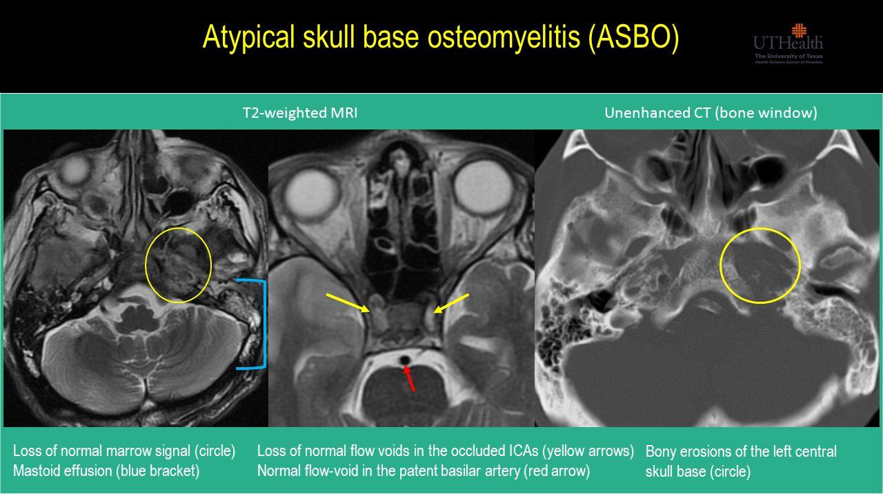 Skull anatomy radiology