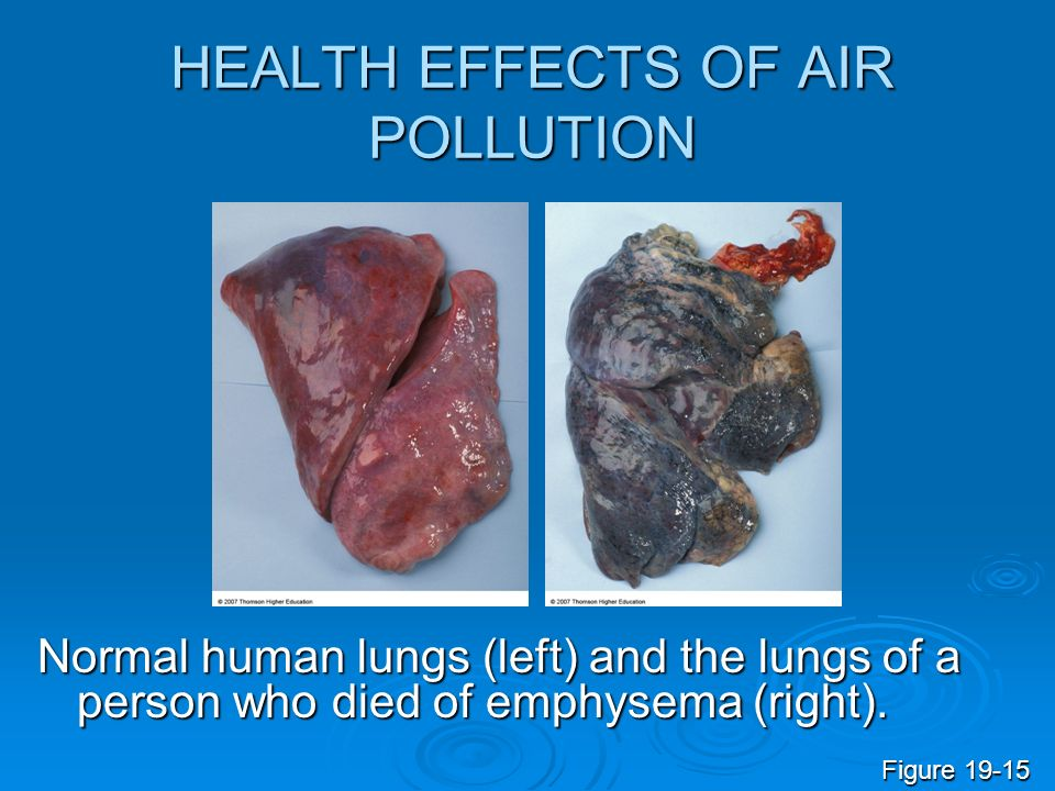 Smog pollution as a consequence of human behavior