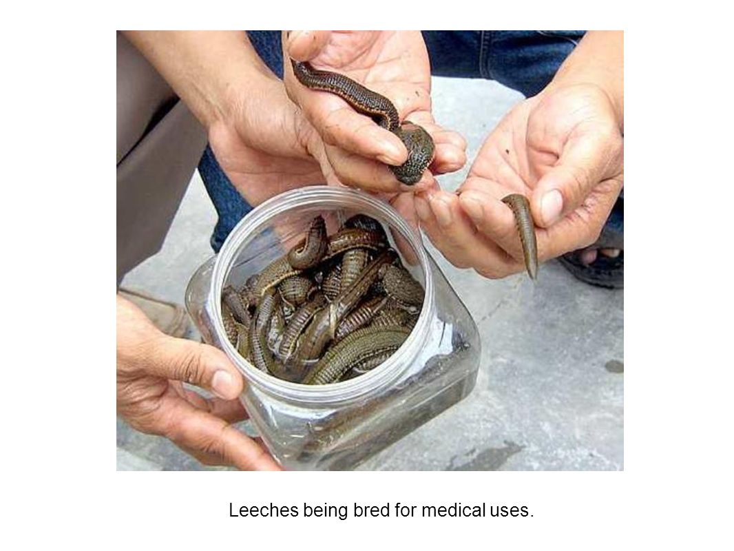 Leeches and medical use