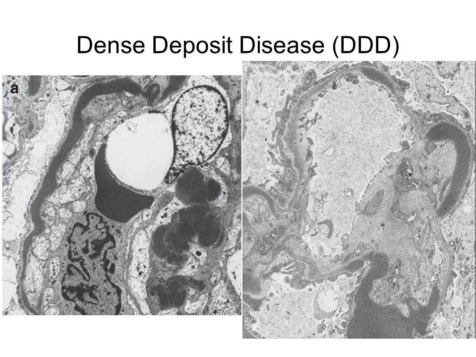 jason and his diseases glomerulonephritis Diabetes dr jason fung by diydiabetestreatmentcom diabetes dr jason fung - in 3 weeks, 71% type 2 diabetics were taken off all medication.