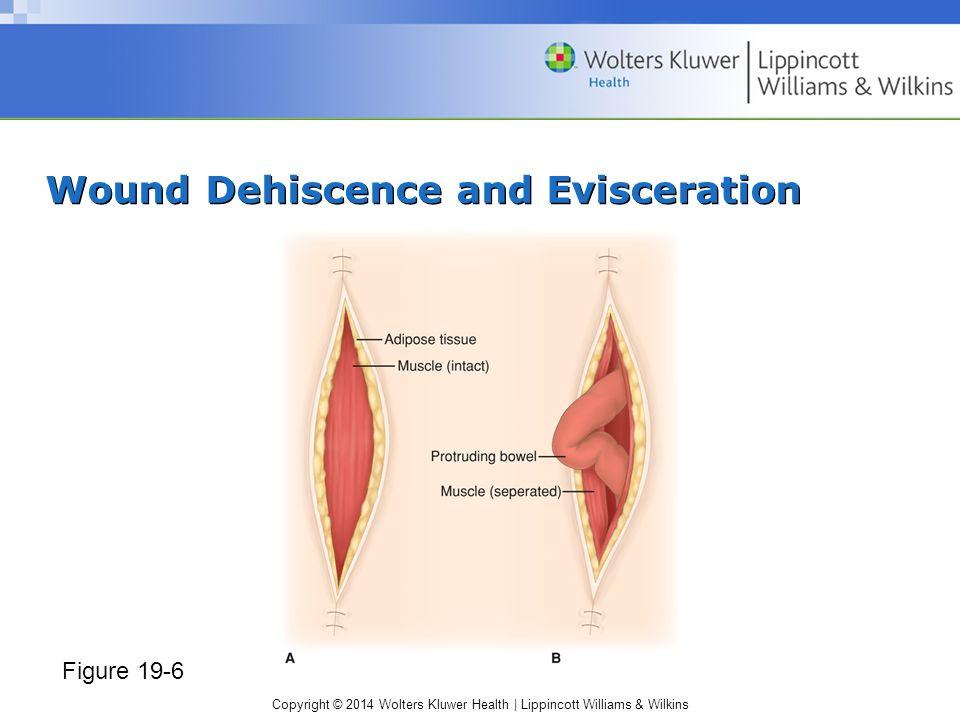 deep vein thrombosis nursing diagnosis