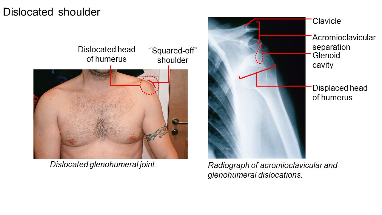 Dislocated shoulder diagram 436030 - follow4more.info