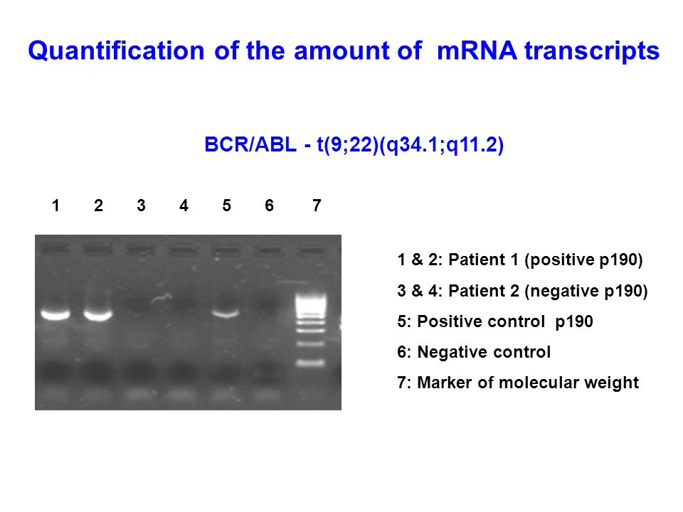 Quantification of the amount of mRNA transcripts