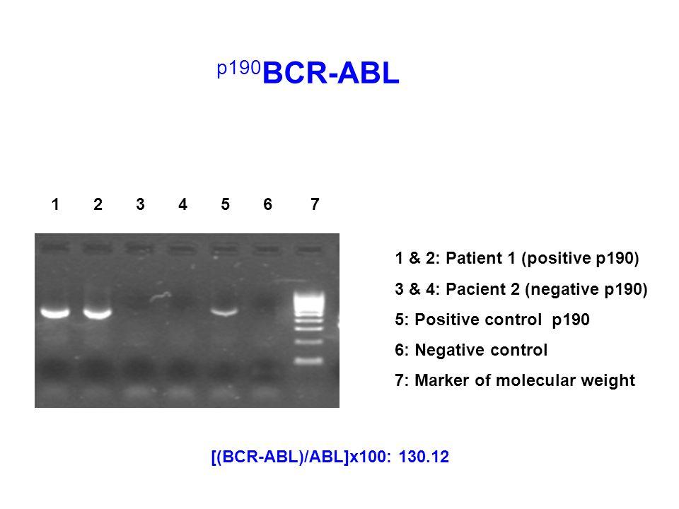p190BCR-ABL 1 2 3 4 5 6 7 1 & 2: Patient 1 (positive p190)