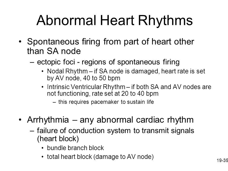 Abnormal Heart Rhythms