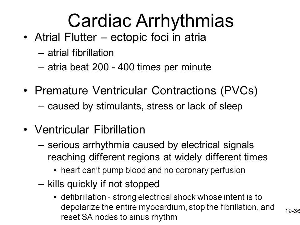 Cardiac Arrhythmias Atrial Flutter – ectopic foci in atria