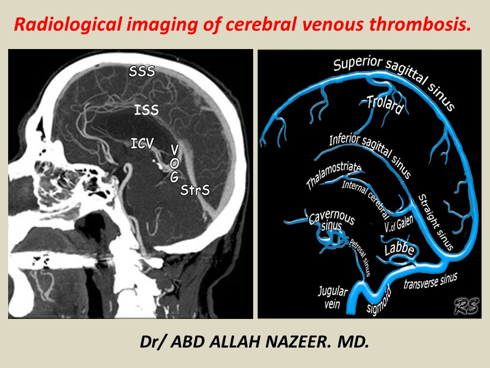 Radiological Imaging Of Cerebral Venous Thrombosis Ppt Video