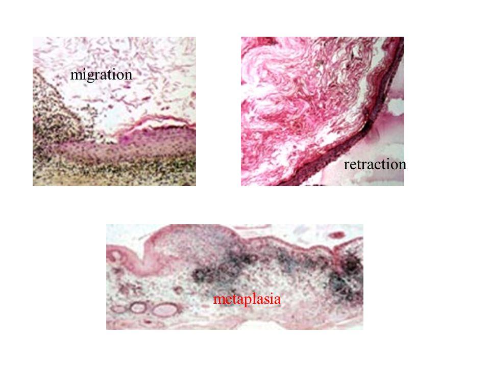 migration retraction metaplasia
