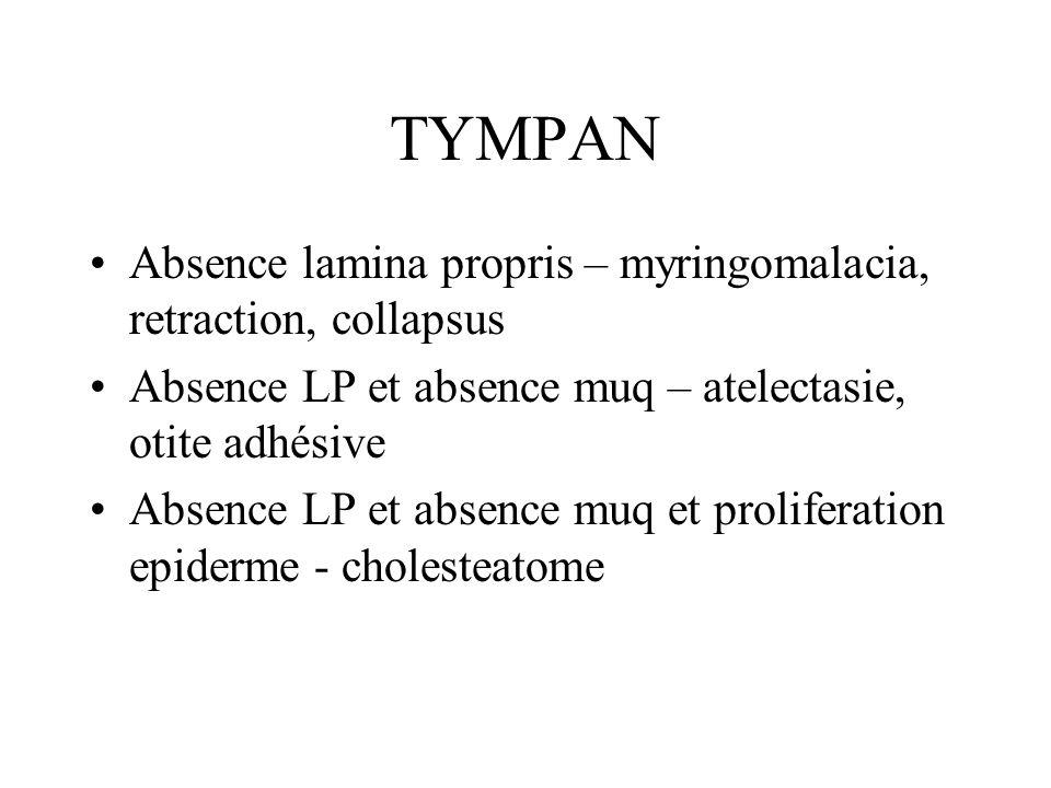TYMPAN Absence lamina propris – myringomalacia, retraction, collapsus