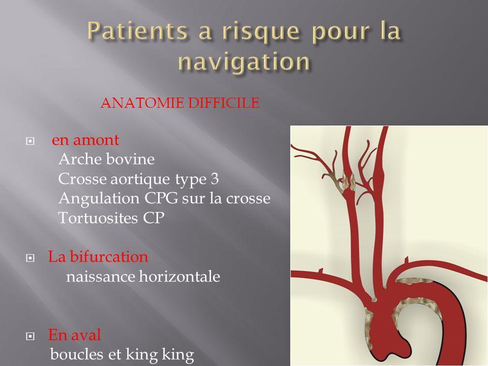 Patients a risque pour la navigation