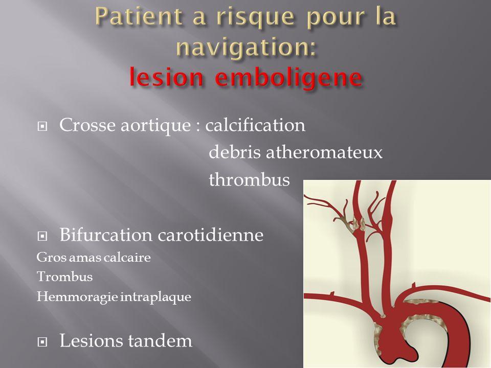 Patient a risque pour la navigation: lesion emboligene