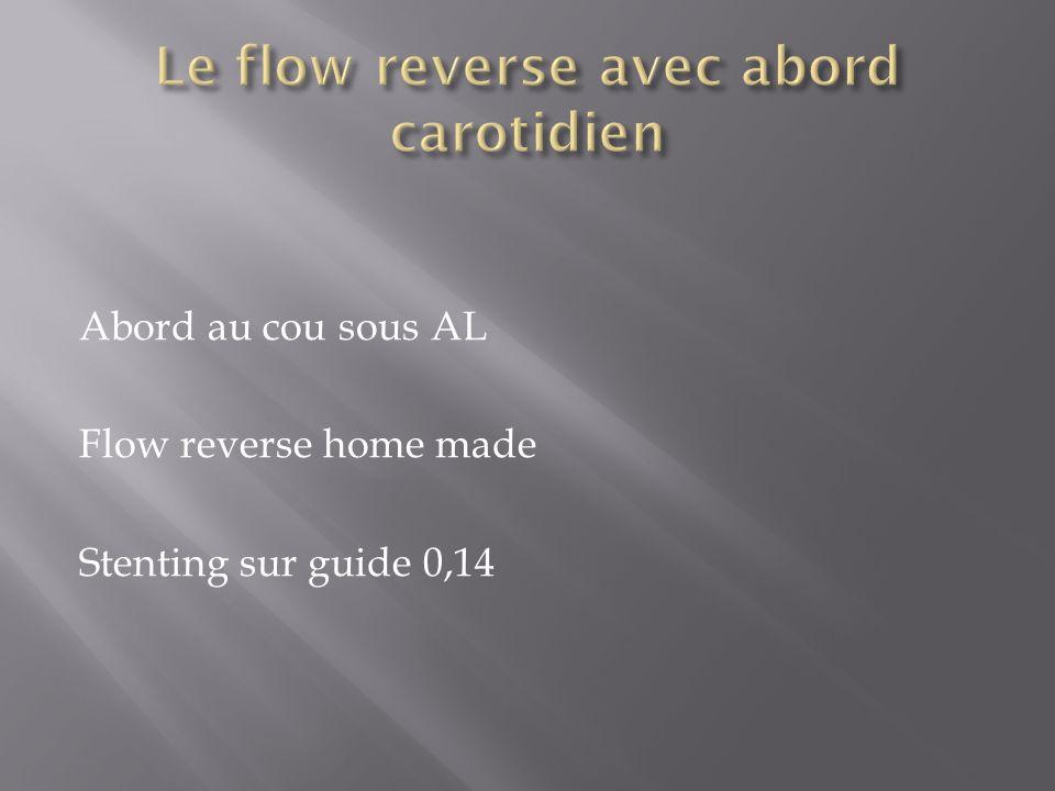 Le flow reverse avec abord carotidien
