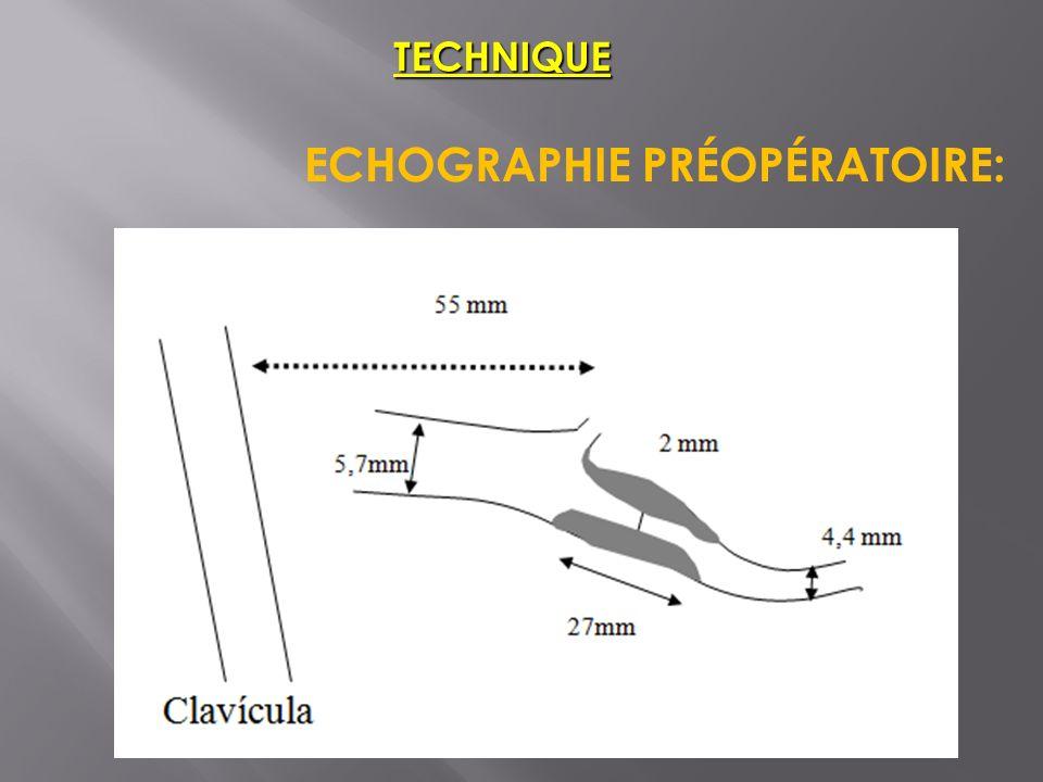 ECHOGRAPHIE PRÉOPÉRATOIRE: