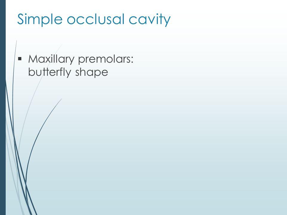 Simple occlusal cavity