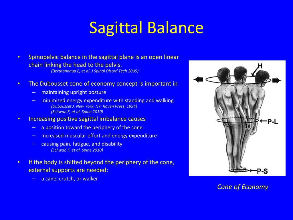 state of the art in sagittal balance ppt video online