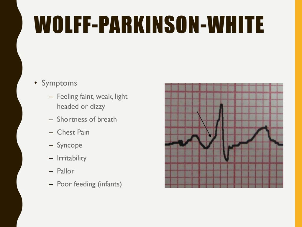 Pediatric Chest Pain Ems Region 8 January 2017 Ce Ppt