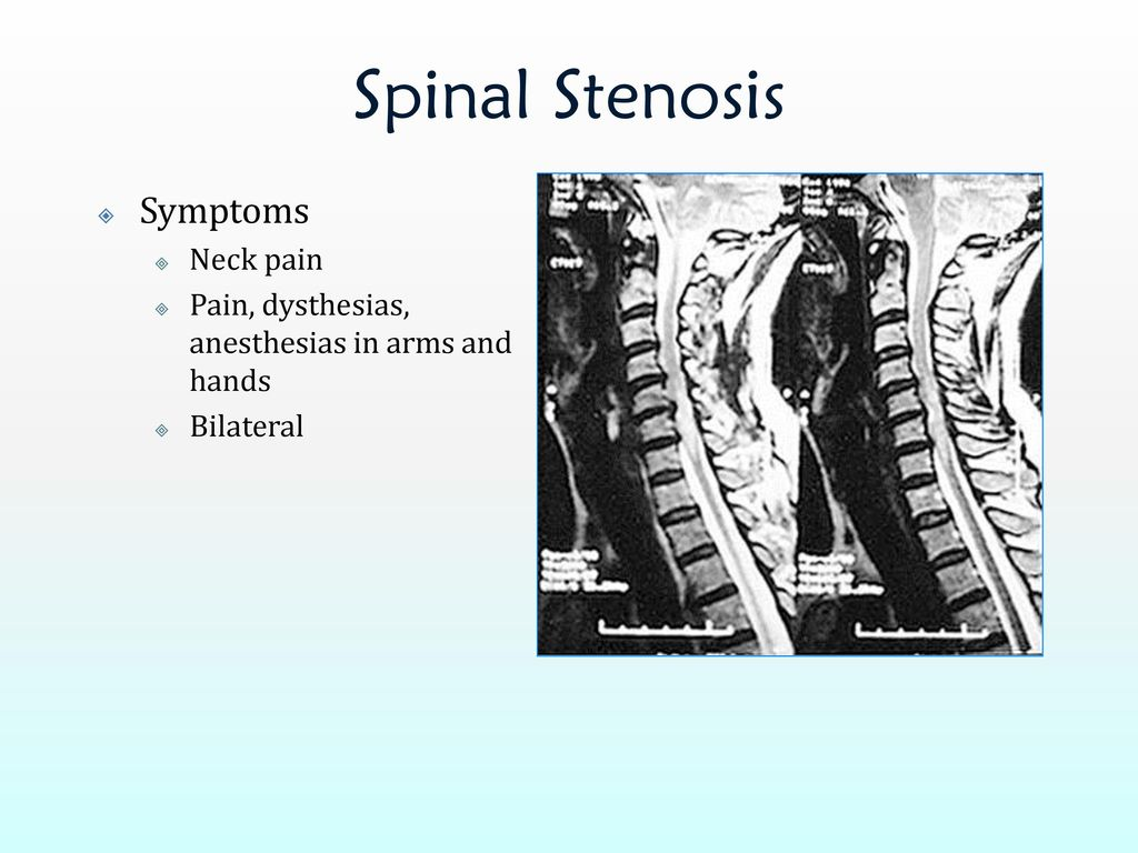 Spinal stenosis symptoms