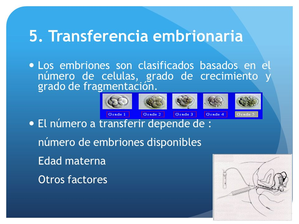 5. Transferencia embrionaria