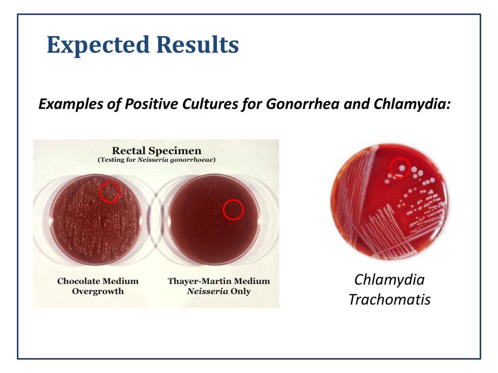 chlamydia trachomatis test