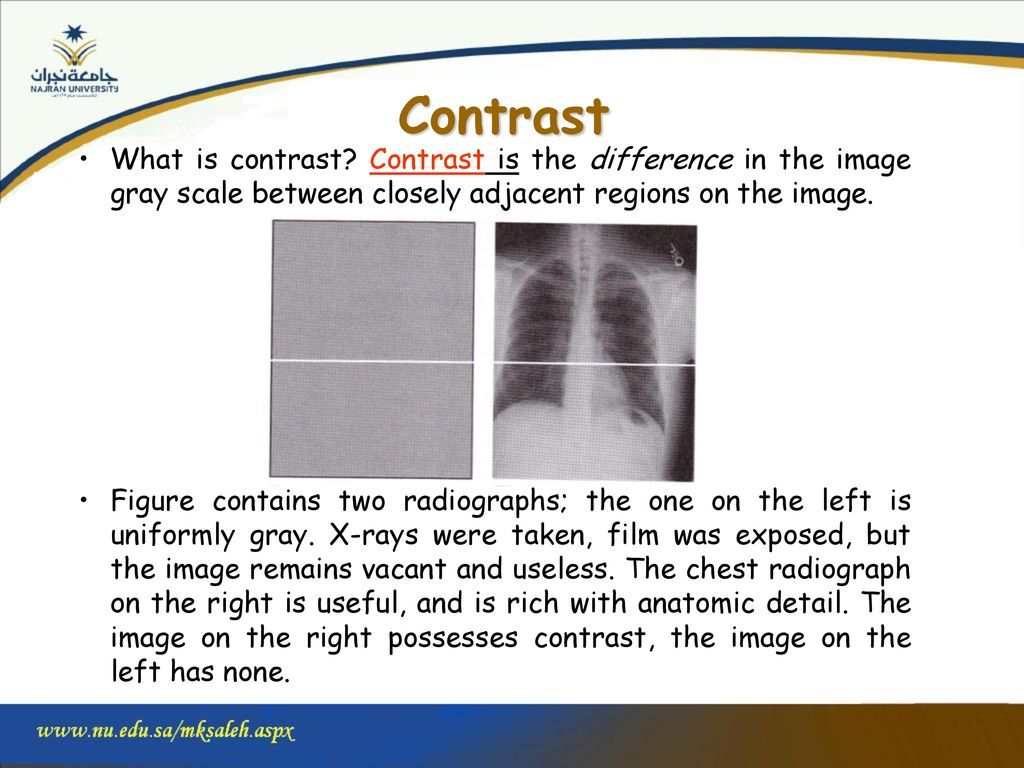 Planar nuclear imaging: the anger scintillation camera - ppt download