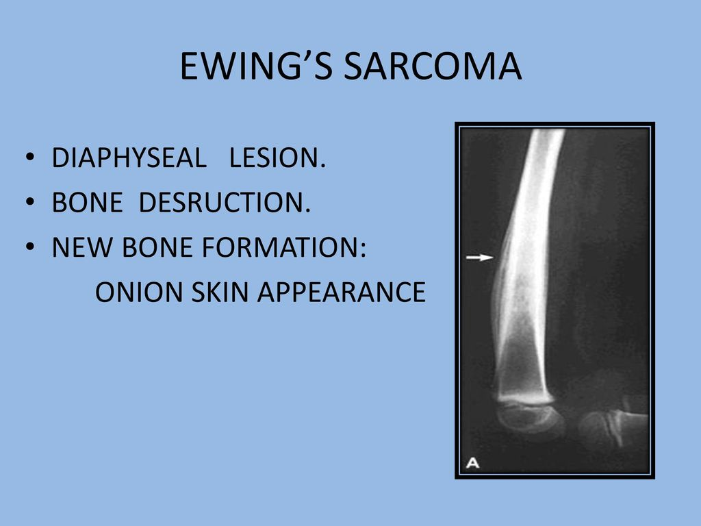 RADIOLOGY OF BONE TUMOURS - ppt video online download