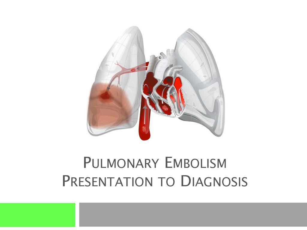 Pulmonary Embolism Air Travel