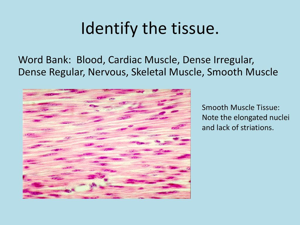 tissue study guide Tissues study guide - free download as word doc (doc), pdf file (pdf), text file (txt) or read online for free.