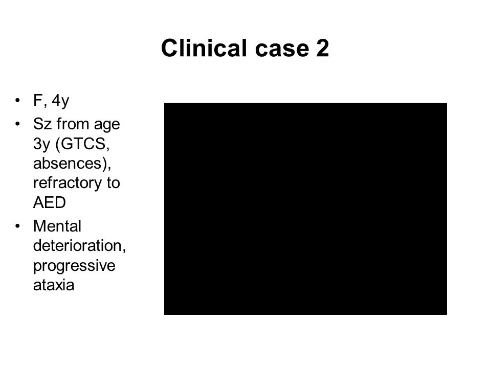 Clinical case 2 F, 4y. Sz from age 3y (GTCS, absences), refractory to AED.