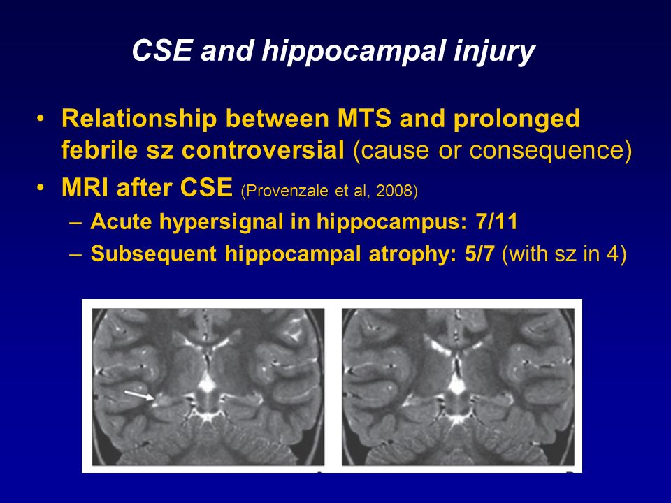 CSE and hippocampal injury