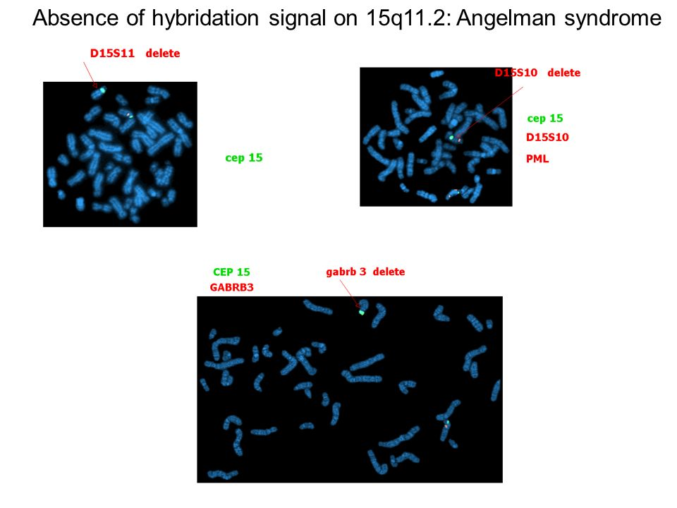 Absence of hybridation signal on 15q11.2: Angelman syndrome