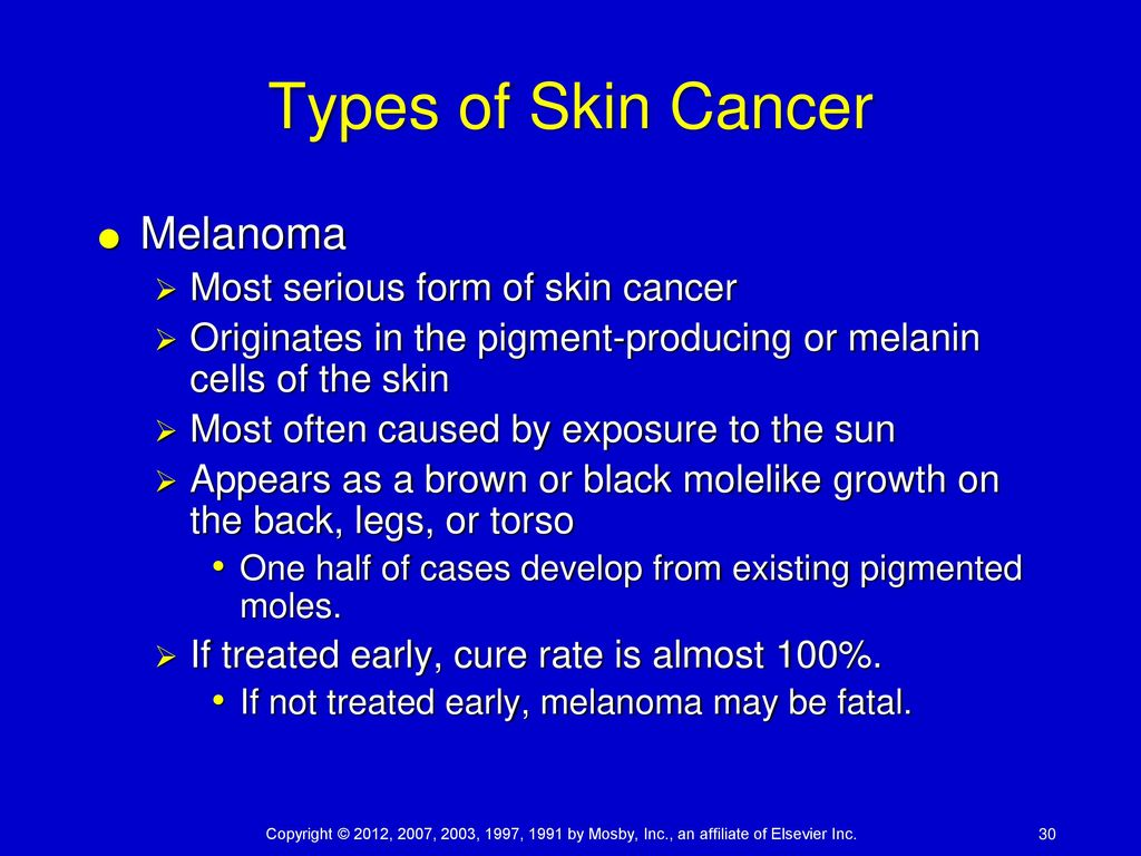 melanoma a serious type of skin Malignant melanoma is the most serious type, since it's more likely to spread beneath the skin it can be life threatening: 10,000 people will die this year from.