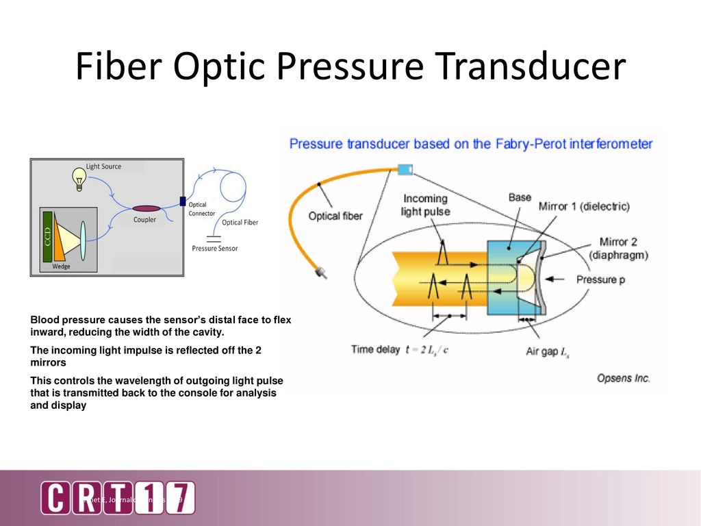 Stunning 4 Wire Pressure Transducer Ideas - Electrical System Block ...