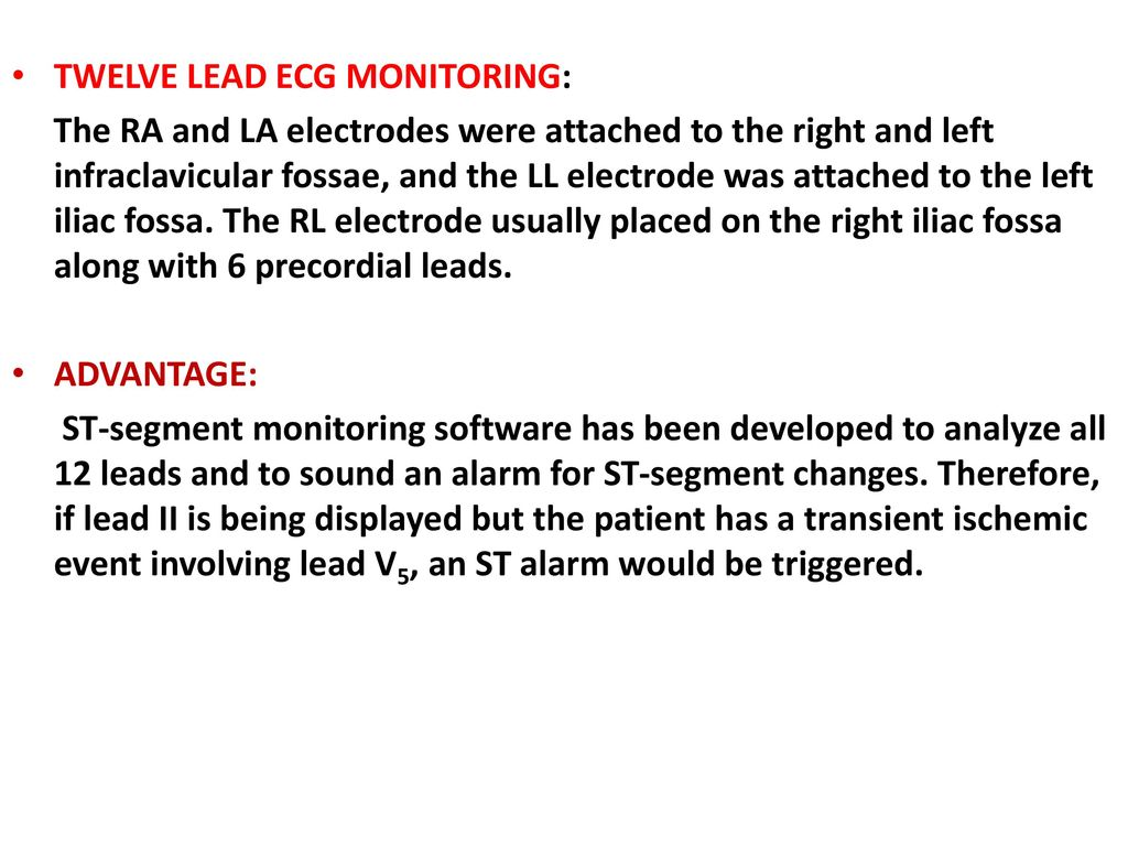 ecg monitoring. - ppt download, Powerpoint templates