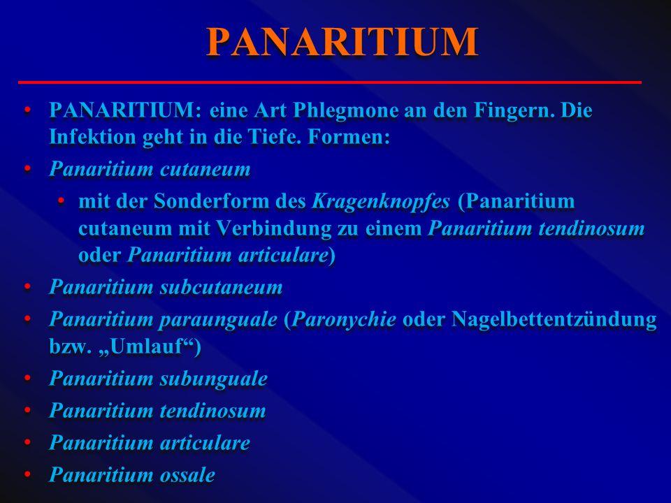 PANARITIUM PANARITIUM: eine Art Phlegmone an den Fingern. Die Infektion geht in die Tiefe. Formen: Panaritium cutaneum.
