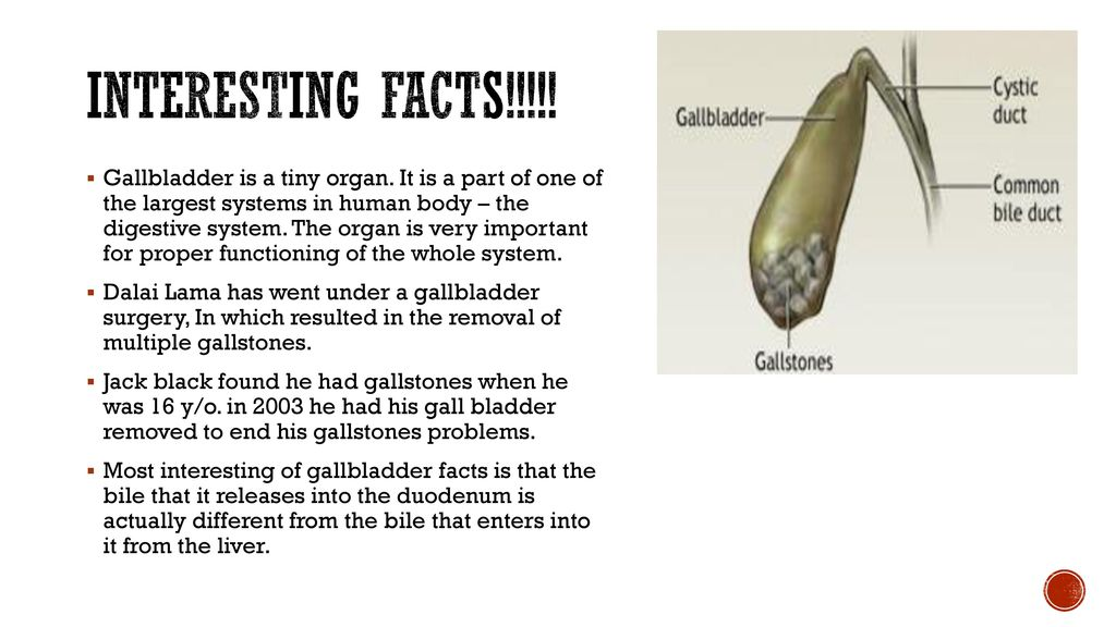Learning About Gallstones Ppt Download