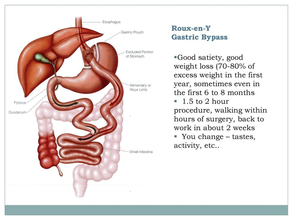 Gastric Bypass Use Levitra