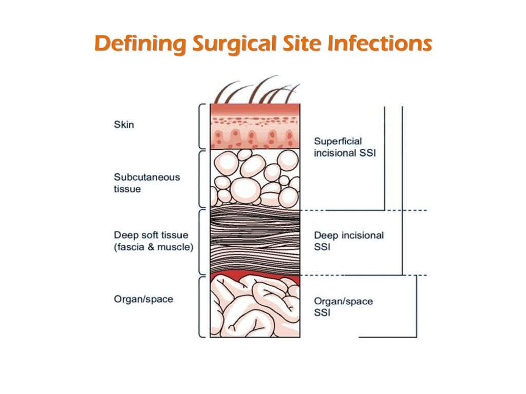 Preventing Surgical Site Infections Ppt Video Online