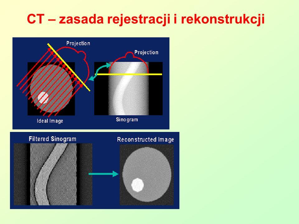 CT – zasada rejestracji i rekonstrukcji