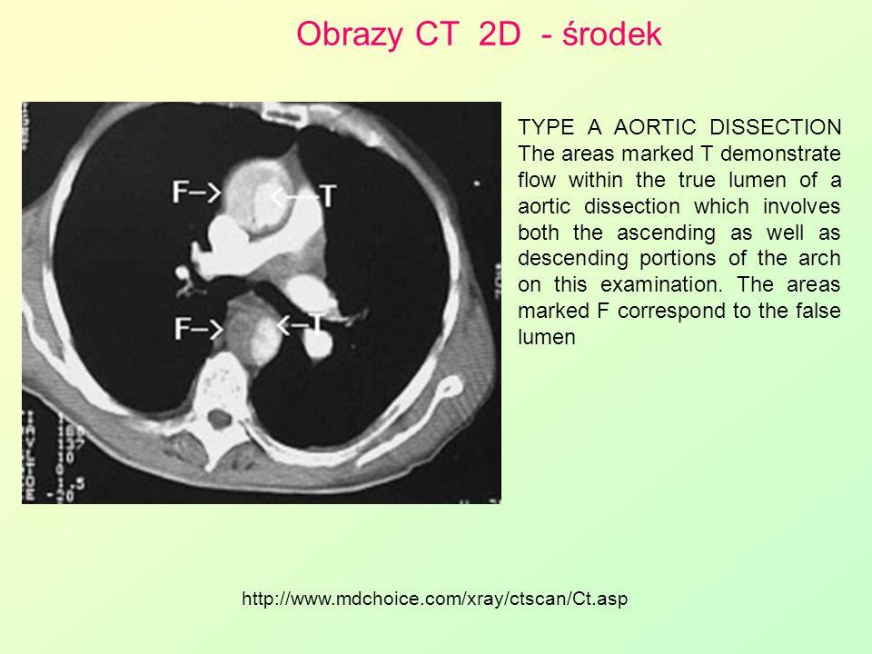 Obrazy CT 2D - środek